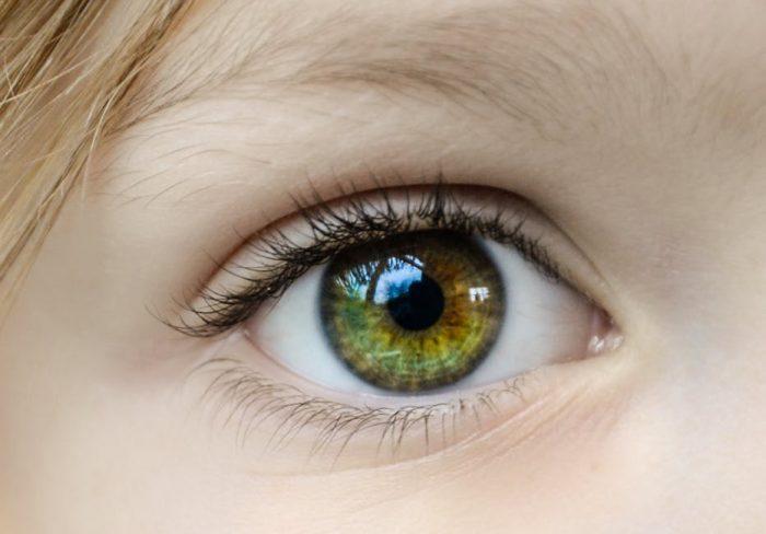 Eye problem home care Robbins Homeopathy